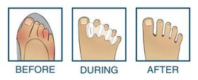 Correct Toes teenspreiders-7361
